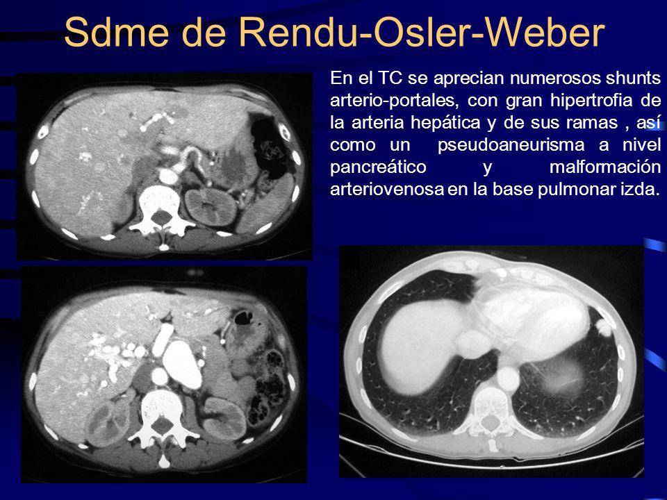 En el TC se aprecian numerosos shunts arterio-portales, con gran hipertrofia de la arteria hepática y de sus ramas, así como un pseudoaneurisma a nive