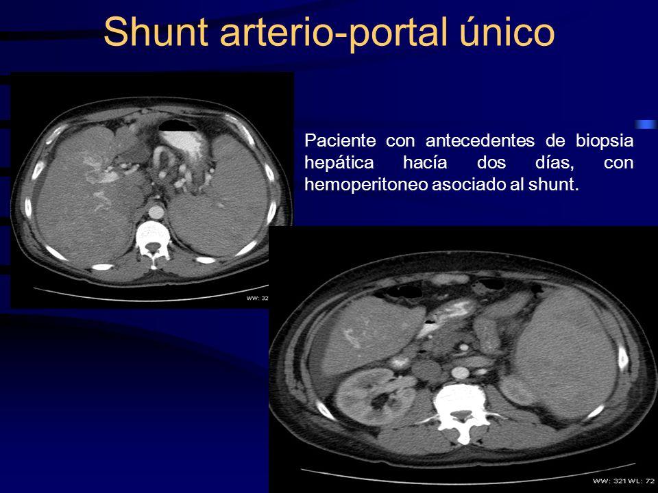 Paciente con antecedentes de biopsia hepática hacía dos días, con hemoperitoneo asociado al shunt. Shunt arterio-portal único