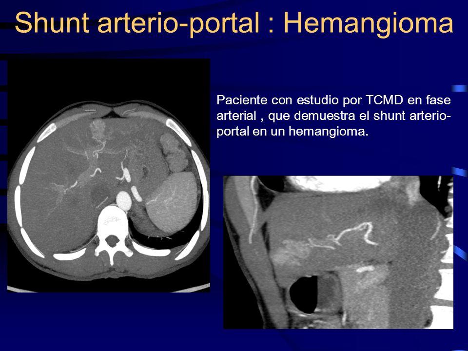 Paciente con estudio por TCMD en fase arterial, que demuestra el shunt arterio- portal en un hemangioma. Shunt arterio-portal : Hemangioma