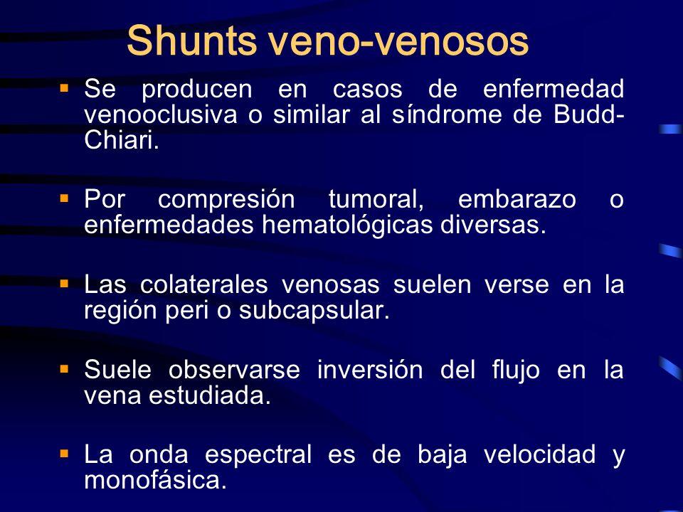 Shunts veno-venosos Se producen en casos de enfermedad venooclusiva o similar al síndrome de Budd- Chiari. Por compresión tumoral, embarazo o enfermed