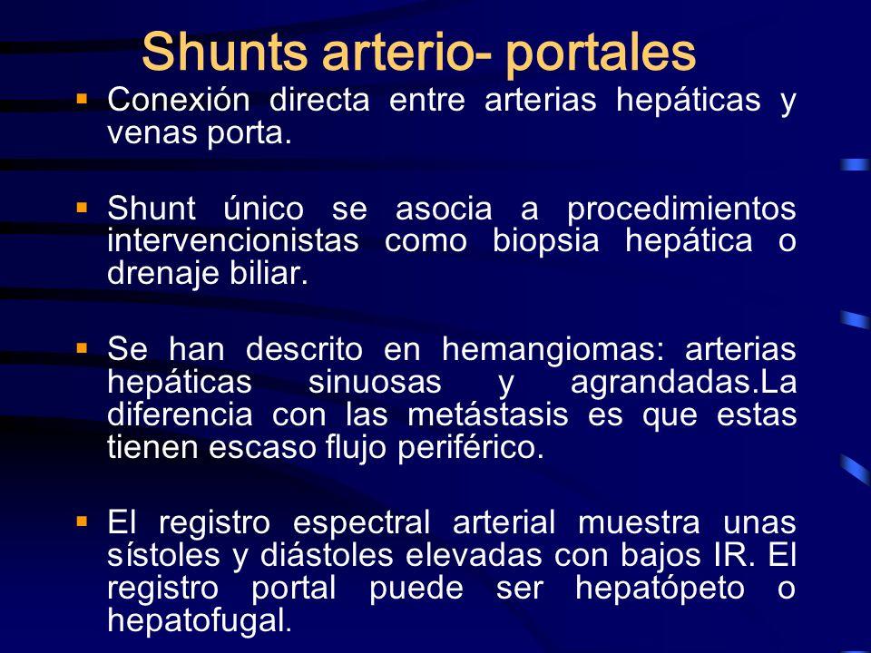 Shunts arterio- portales Conexión directa entre arterias hepáticas y venas porta. Shunt único se asocia a procedimientos intervencionistas como biopsi