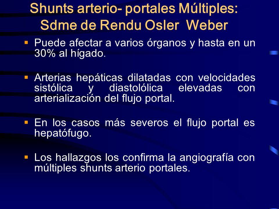 Shunts arterio- portales Múltiples: Sdme de Rendu Osler Weber Puede afectar a varios órganos y hasta en un 30% al hígado. Arterias hepáticas dilatadas