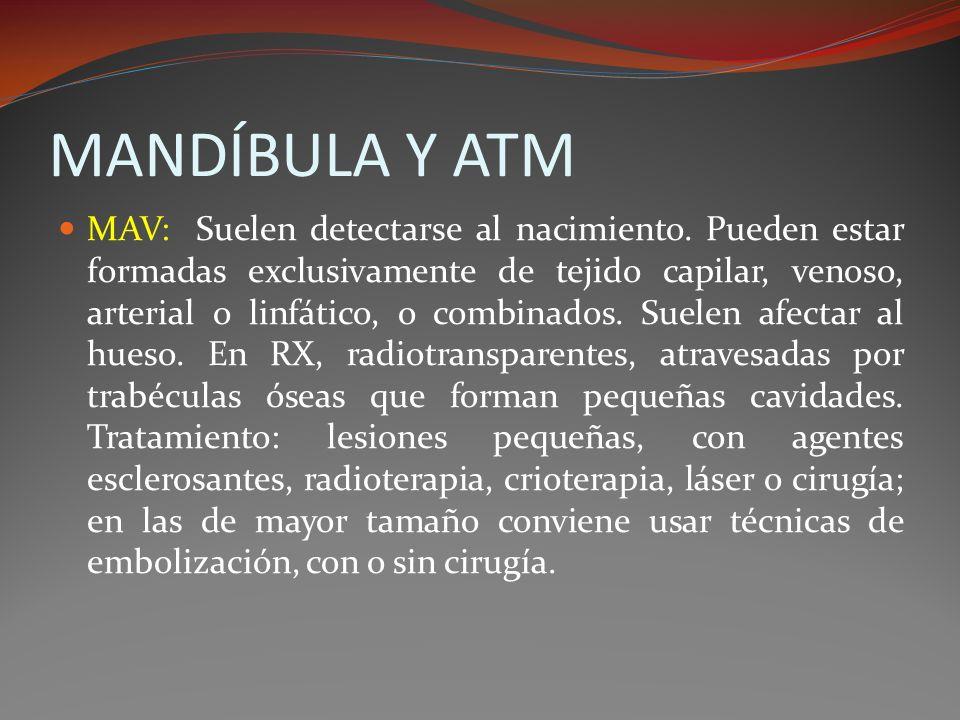 MANDÍBULA Y ATM MAV: Suelen detectarse al nacimiento. Pueden estar formadas exclusivamente de tejido capilar, venoso, arterial o linfático, o combinad