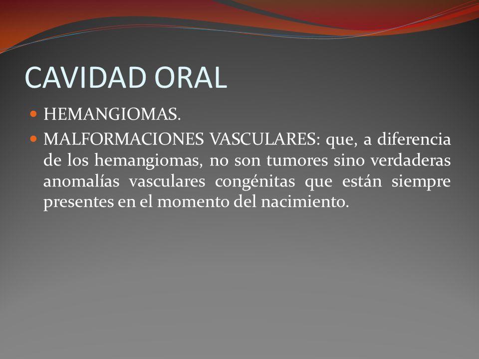 CAVIDAD ORAL HEMANGIOMAS. MALFORMACIONES VASCULARES: que, a diferencia de los hemangiomas, no son tumores sino verdaderas anomalías vasculares congéni