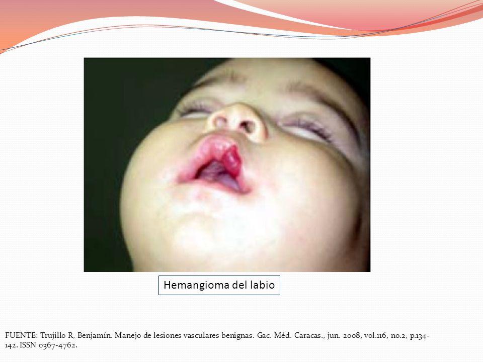 FUENTE: Trujillo R, Benjamín. Manejo de lesiones vasculares benignas. Gac. Méd. Caracas., jun. 2008, vol.116, no.2, p.134- 142. ISSN 0367-4762. Hemang