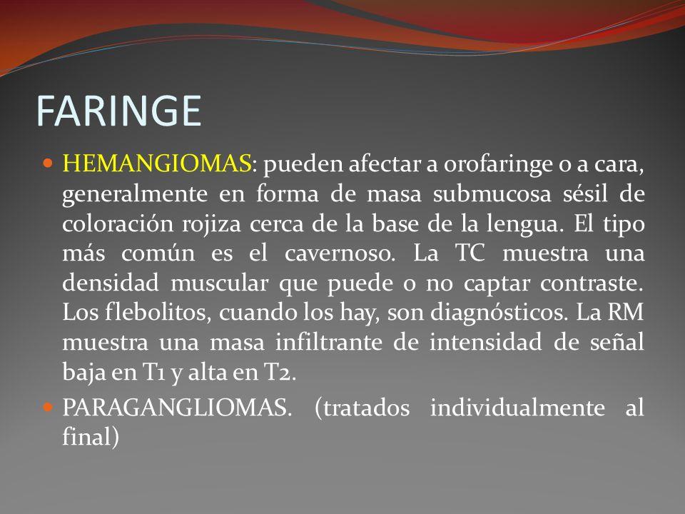FARINGE HEMANGIOMAS: pueden afectar a orofaringe o a cara, generalmente en forma de masa submucosa sésil de coloración rojiza cerca de la base de la l