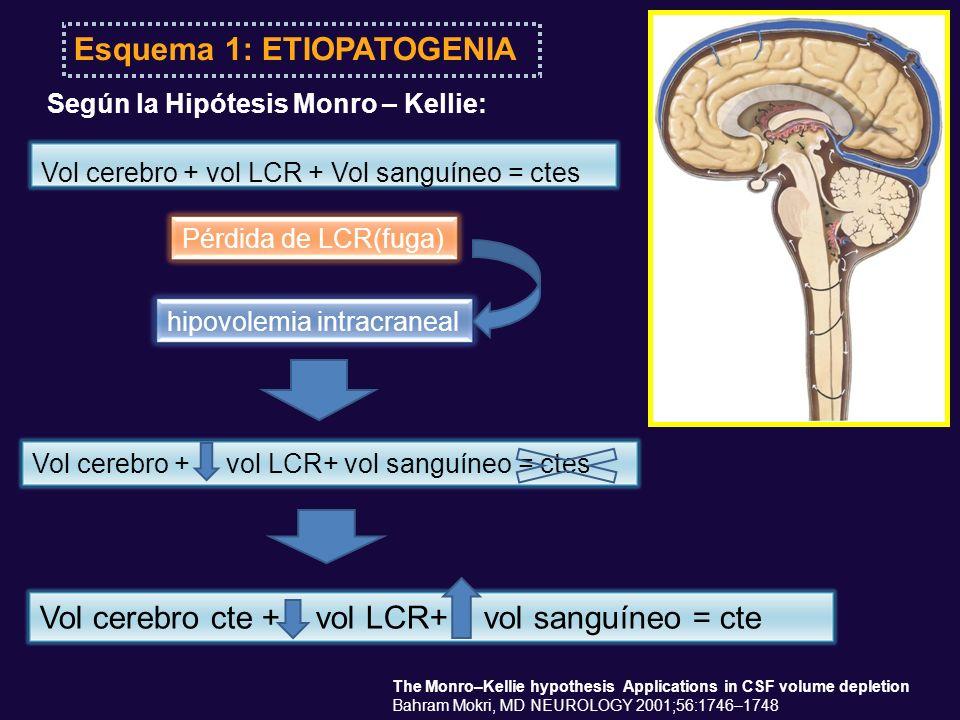Esquema 1: ETIOPATOGENIA Pérdida de LCR(fuga)hipovolemia intracraneal Vol cerebro + vol LCR + Vol sanguíneo = ctes Según la Hipótesis Monro – Kellie: