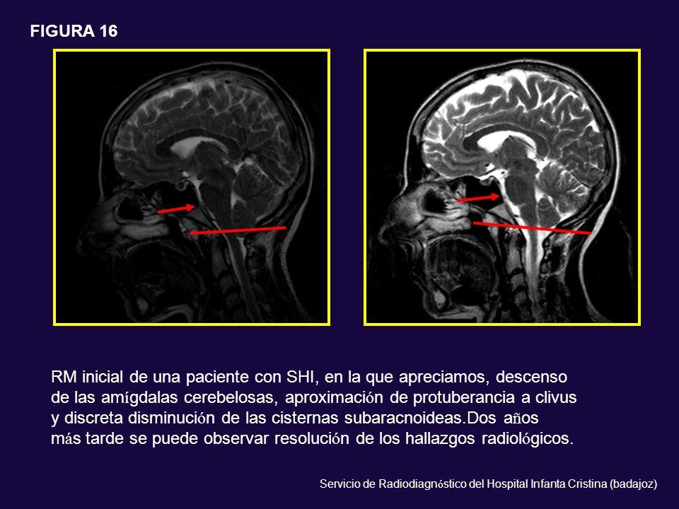 RM inicial de una paciente con SHI, en la que apreciamos, descenso de las am í gdalas cerebelosas, aproximaci ó n de protuberancia a clivus y discreta