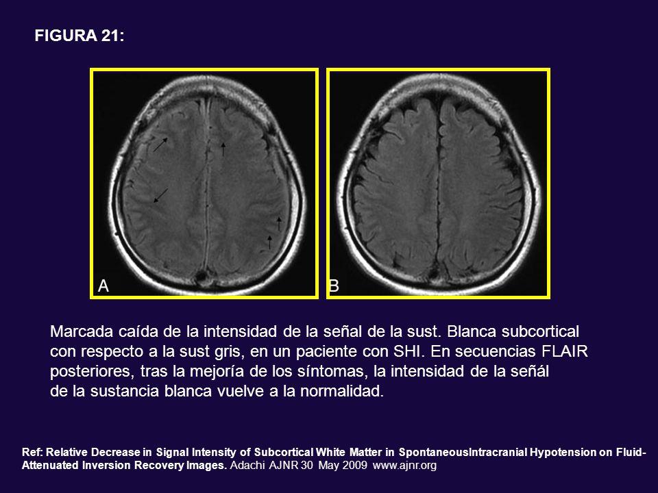 Marcada caída de la intensidad de la señal de la sust. Blanca subcortical con respecto a la sust gris, en un paciente con SHI. En secuencias FLAIR pos