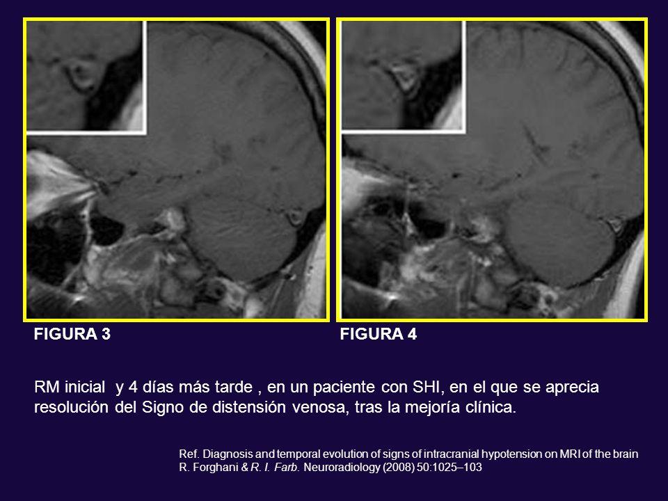 RM inicial y 4 días más tarde, en un paciente con SHI, en el que se aprecia resolución del Signo de distensión venosa, tras la mejoría clínica. Ref. D