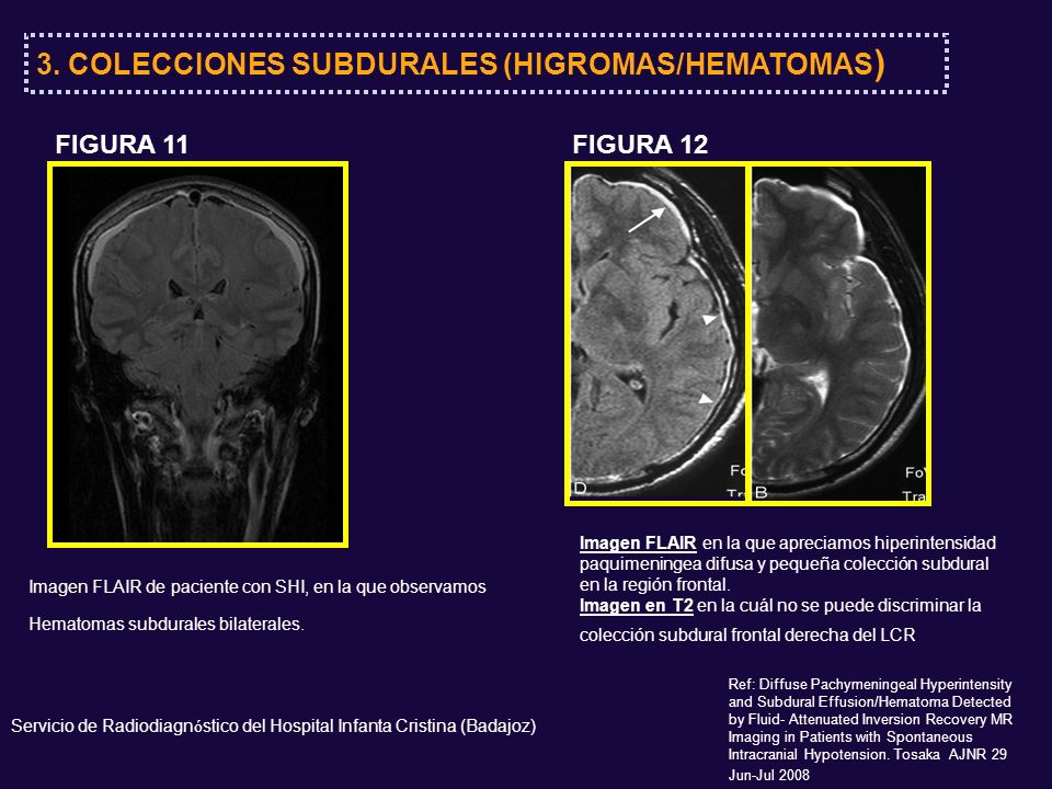 FLAIRFLAIR T1 con Gd 1 mes después Ref: Diffuse Pachymeningeal Hyperintensity and Subdural Effusion/Hematoma Detected by Fluid- Attenuated Inversion Recovery MR Imaging in Patients with Spontaneous Intracranial Hypotension.