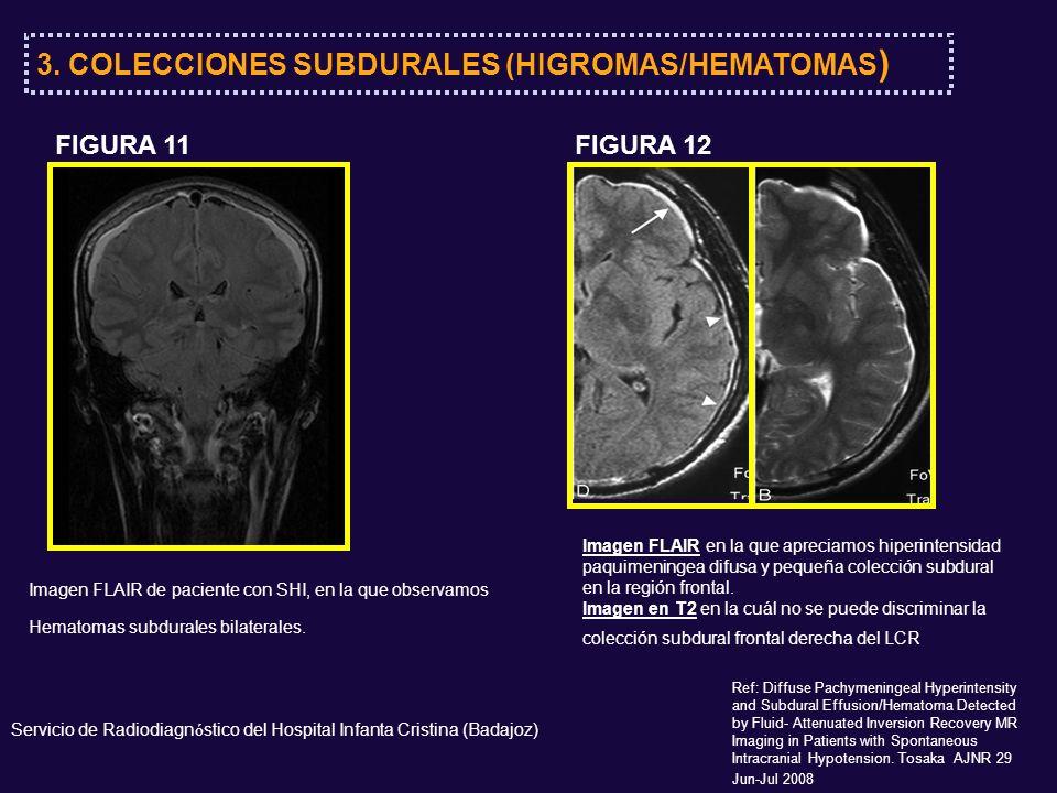 3. COLECCIONES SUBDURALES (HIGROMAS/HEMATOMAS ) Servicio de Radiodiagn ó stico del Hospital Infanta Cristina (Badajoz) Imagen FLAIR de paciente con SH