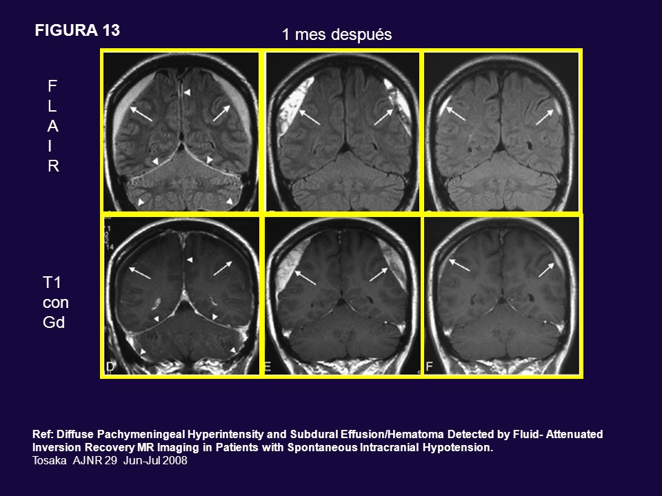 FLAIRFLAIR T1 con Gd 1 mes después Ref: Diffuse Pachymeningeal Hyperintensity and Subdural Effusion/Hematoma Detected by Fluid- Attenuated Inversion R
