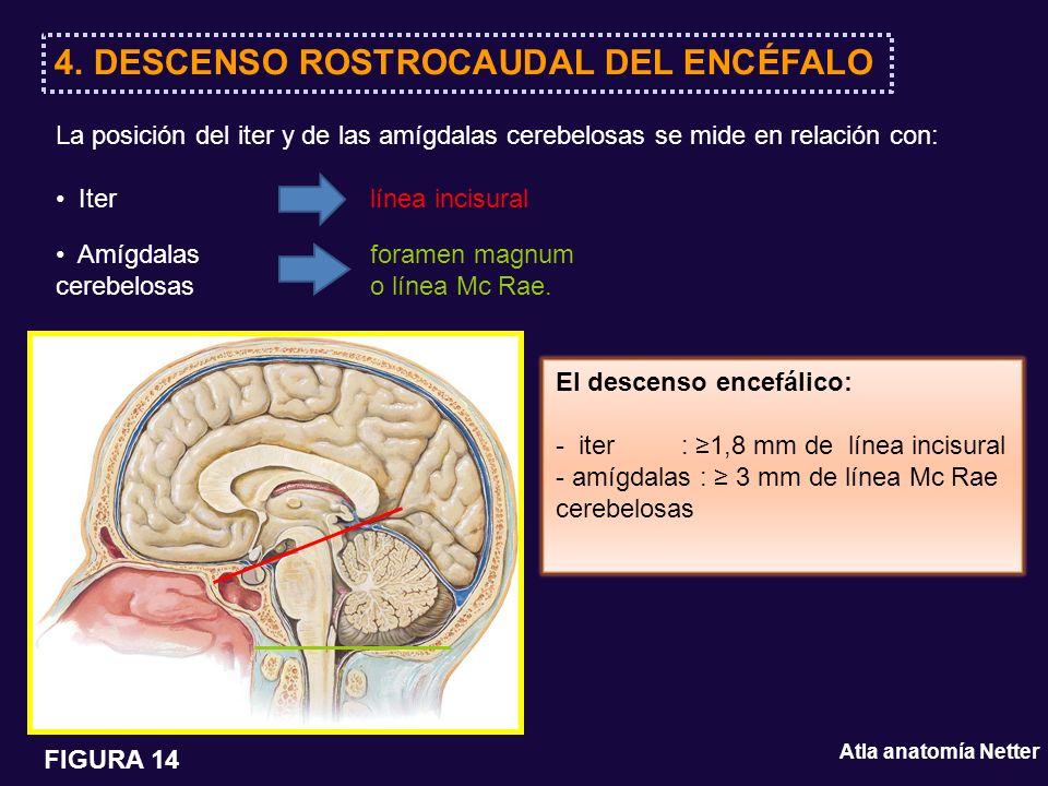 La posición del iter y de las amígdalas cerebelosas se mide en relación con: Iter línea incisural Amígdalas foramen magnum cerebelosaso línea Mc Rae.