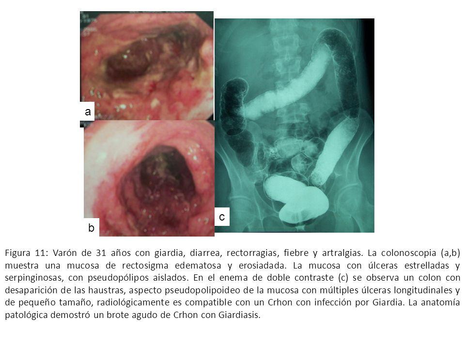 Figura 11: Varón de 31 años con giardia, diarrea, rectorragias, fiebre y artralgias. La colonoscopia (a,b) muestra una mucosa de rectosigma edematosa