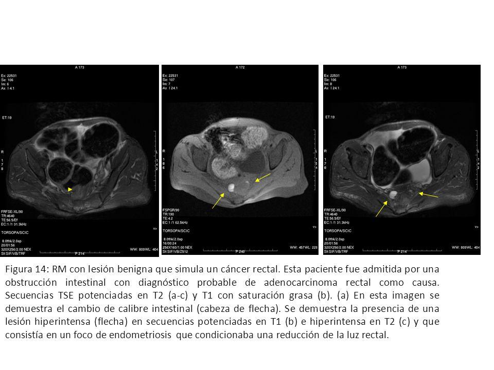 Figura 14: RM con lesión benigna que simula un cáncer rectal. Esta paciente fue admitida por una obstrucción intestinal con diagnóstico probable de ad