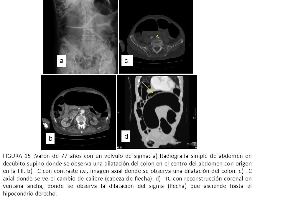 a b FIGURA 15 :Varón de 77 años con un vólvulo de sigma: a) Radiografía simple de abdomen en decúbito supino donde se observa una dilatación del colon