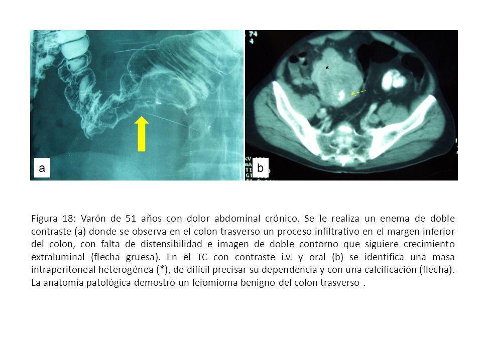 Figura 18: Varón de 51 años con dolor abdominal crónico. Se le realiza un enema de doble contraste (a) donde se observa en el colon trasverso un proce