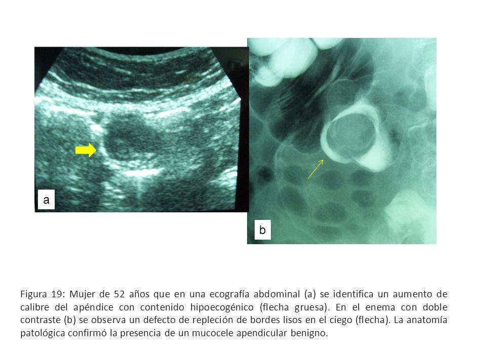 Figura 19: Mujer de 52 años que en una ecografía abdominal (a) se identifica un aumento de calibre del apéndice con contenido hipoecogénico (flecha gr