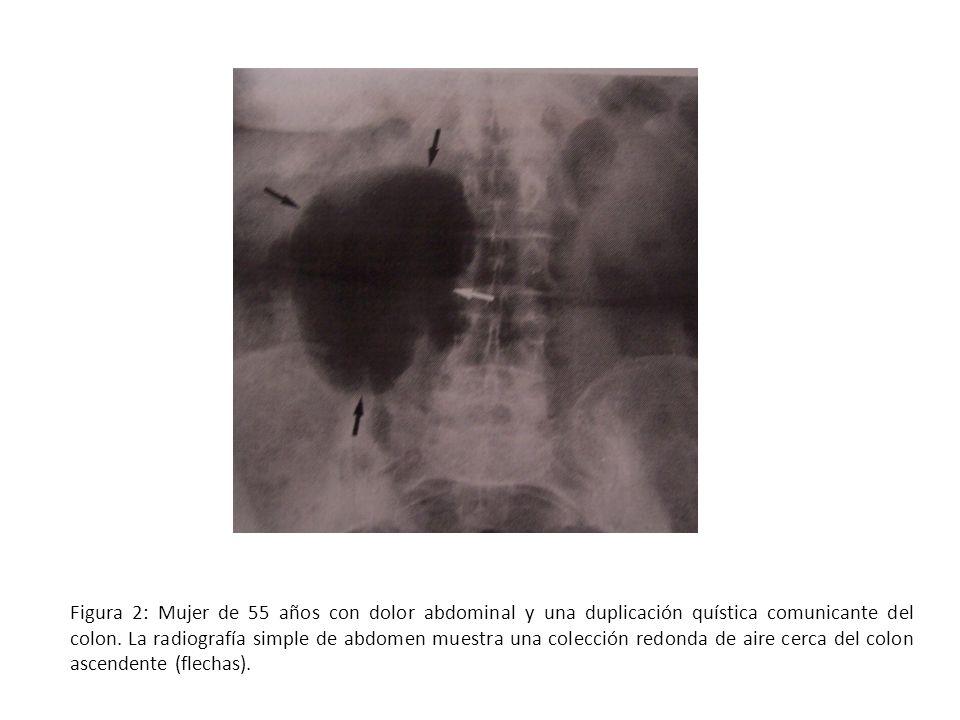 Figura 2: Mujer de 55 años con dolor abdominal y una duplicación quística comunicante del colon. La radiografía simple de abdomen muestra una colecció