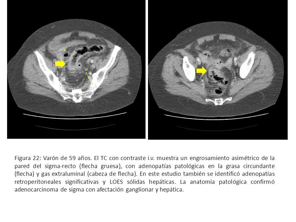 Figura 22: Varón de 59 años. El TC con contraste i.v. muestra un engrosamiento asimétrico de la pared del sigma-recto (flecha gruesa), con adenopatías