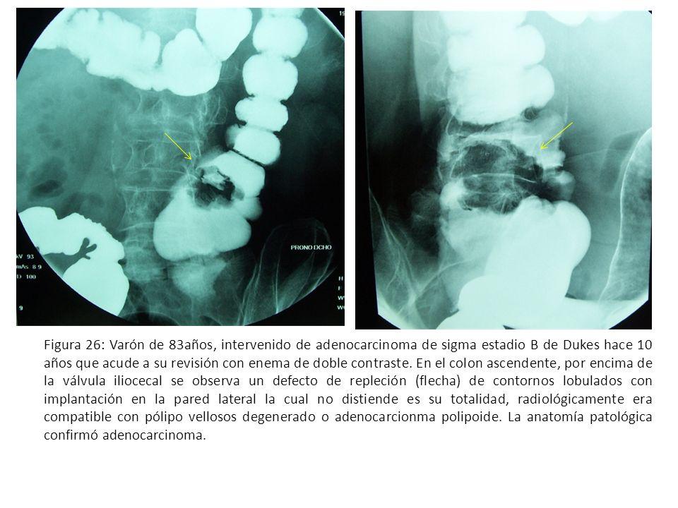 Figura 26: Varón de 83años, intervenido de adenocarcinoma de sigma estadio B de Dukes hace 10 años que acude a su revisión con enema de doble contrast