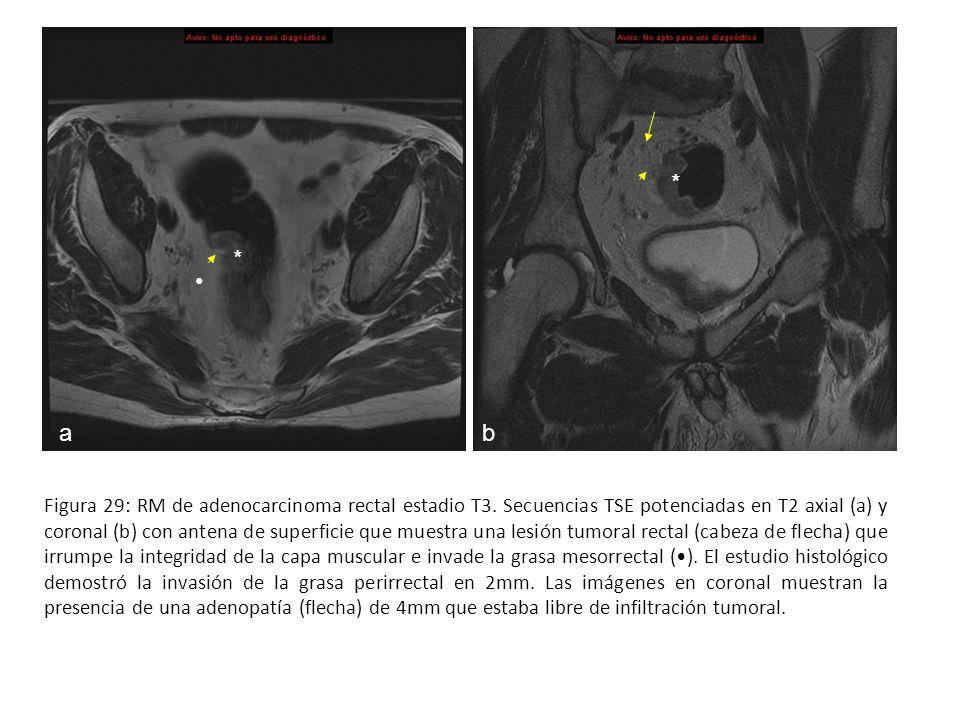 Figura 29: RM de adenocarcinoma rectal estadio T3. Secuencias TSE potenciadas en T2 axial (a) y coronal (b) con antena de superficie que muestra una l