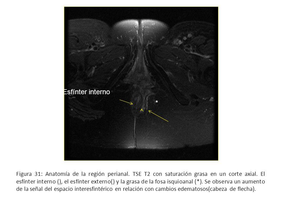 Figura 31: Anatomía de la región perianal. TSE T2 con saturación grasa en un corte axial. El esfínter interno (), el esfínter externo() y la grasa de