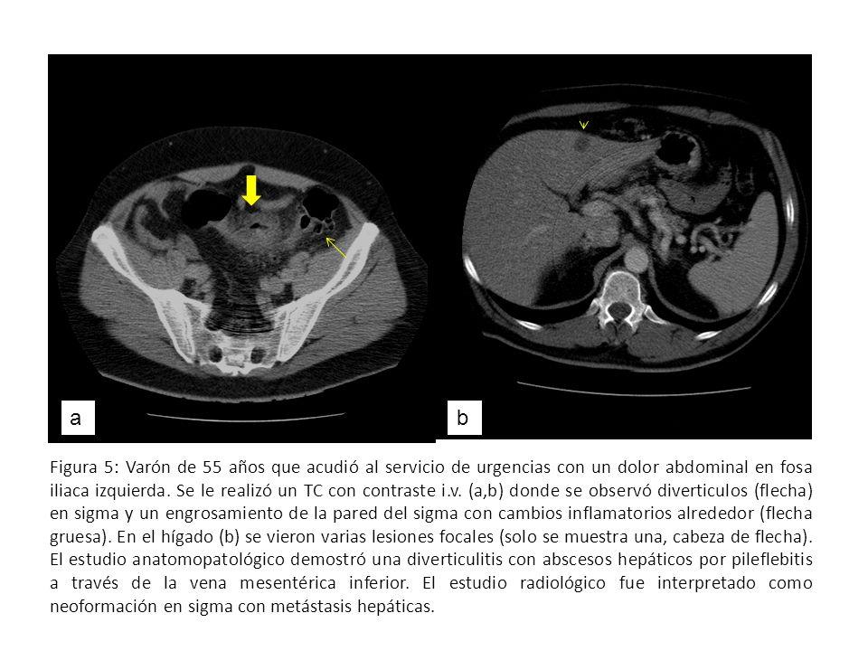 Figura 5: Varón de 55 años que acudió al servicio de urgencias con un dolor abdominal en fosa iliaca izquierda. Se le realizó un TC con contraste i.v.