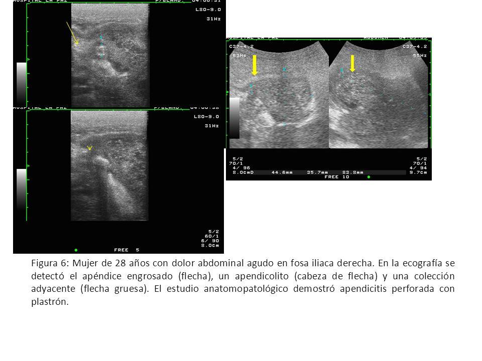 Figura 6: Mujer de 28 años con dolor abdominal agudo en fosa iliaca derecha. En la ecografía se detectó el apéndice engrosado (flecha), un apendicolit