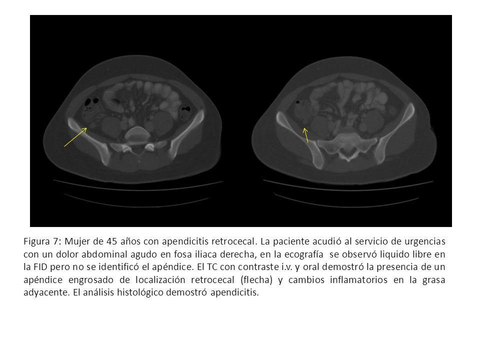 Figura 7: Mujer de 45 años con apendicitis retrocecal. La paciente acudió al servicio de urgencias con un dolor abdominal agudo en fosa iliaca derecha