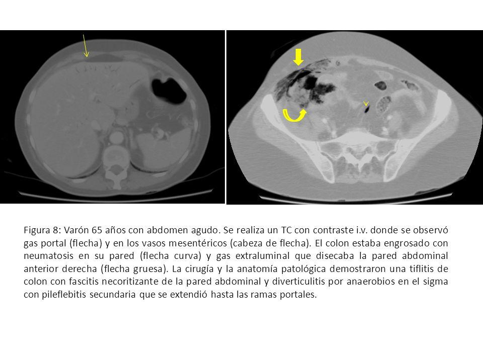 Figura 8: Varón 65 años con abdomen agudo. Se realiza un TC con contraste i.v. donde se observó gas portal (flecha) y en los vasos mesentéricos (cabez