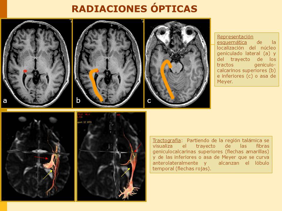 REGIÓN HIPOFISARIA - SENOS CAVERNOSOS (Relación con el quiasma y los pares craneales) Cortes coronales T2: Los nervios ópticos confluyen en el quiasma óptico, a ambos lados del tallo hipofisario que se encuentra centrado.