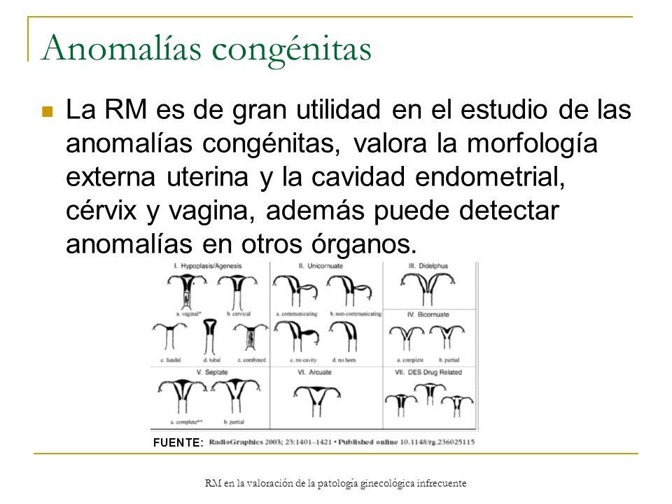 RM en la valoración de la patología ginecológica infrecuente Anomalías congénitas La RM es de gran utilidad en el estudio de las anomalías congénitas,