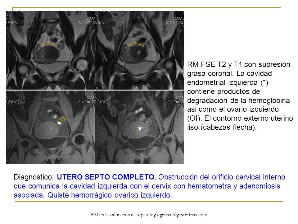 RM en la valoración de la patología ginecológica infrecuente RM FSE T2 y T1 con supresión grasa coronal. La cavidad endometrial izquierda (*) contiene