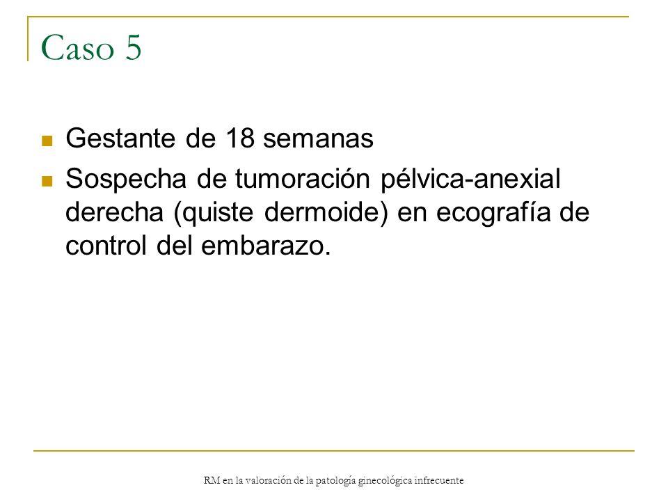 RM en la valoración de la patología ginecológica infrecuente Caso 5 Gestante de 18 semanas Sospecha de tumoración pélvica-anexial derecha (quiste derm