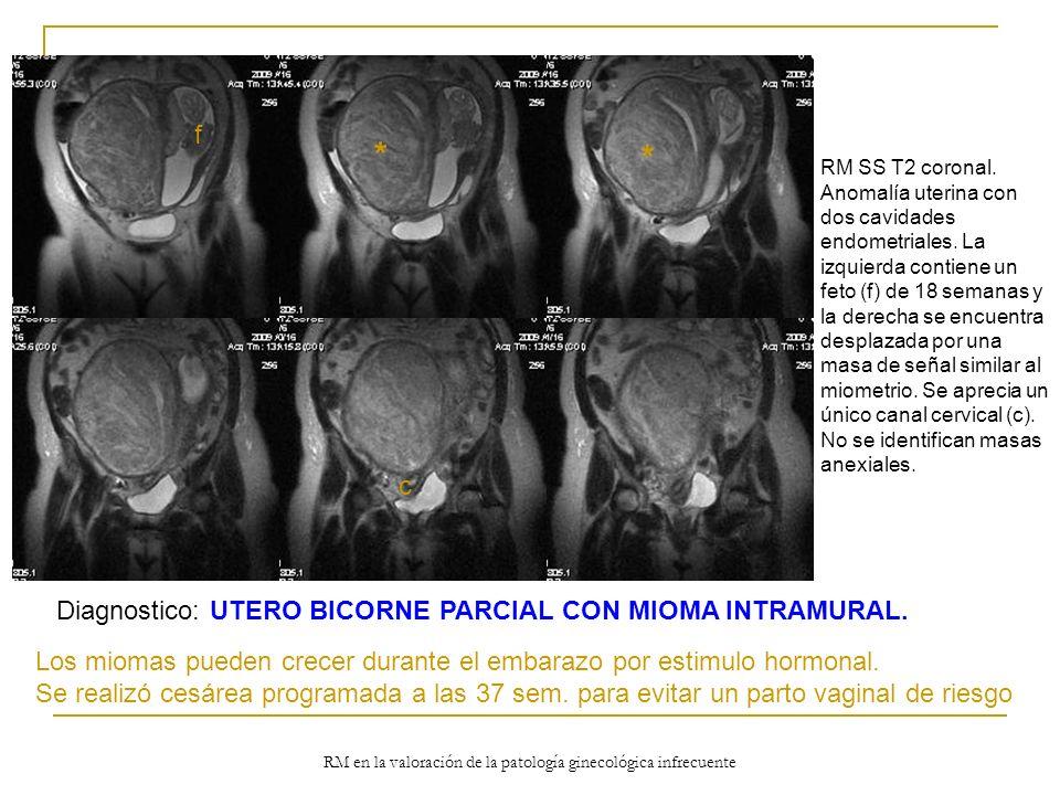 RM en la valoración de la patología ginecológica infrecuente RM SS T2 coronal. Anomalía uterina con dos cavidades endometriales. La izquierda contiene