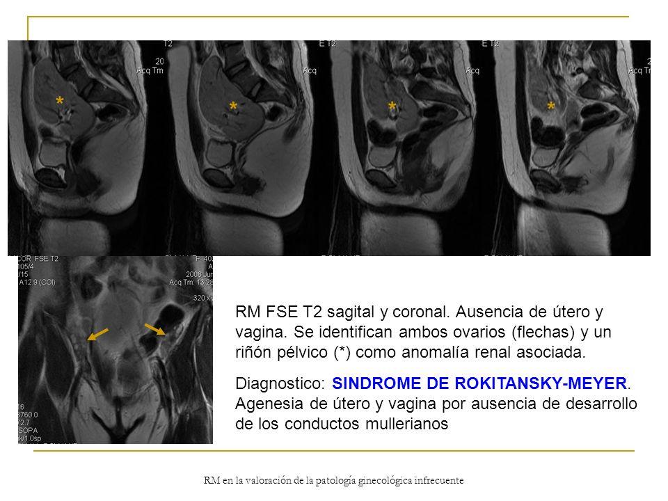 RM en la valoración de la patología ginecológica infrecuente RM FSE T2 sagital y coronal. Ausencia de útero y vagina. Se identifican ambos ovarios (fl