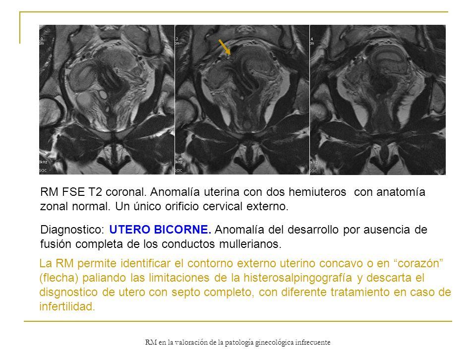 RM en la valoración de la patología ginecológica infrecuente RM FSE T2 coronal. Anomalía uterina con dos hemiuteros con anatomía zonal normal. Un únic