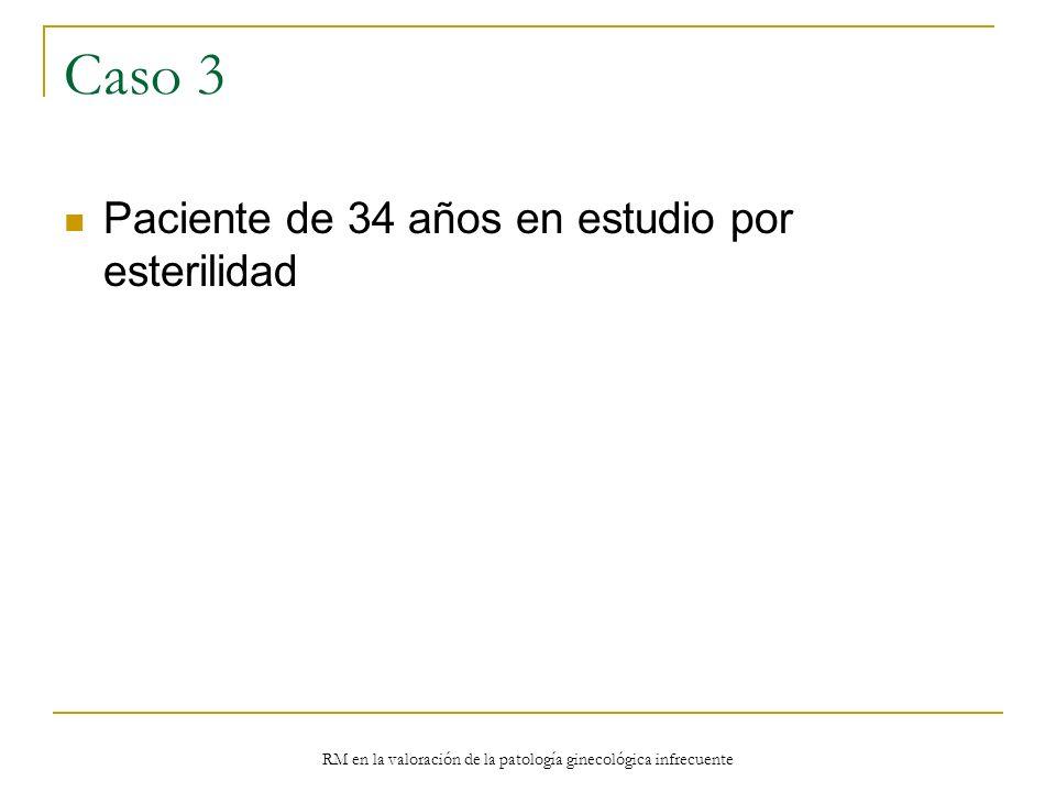 RM en la valoración de la patología ginecológica infrecuente Caso 3 Paciente de 34 años en estudio por esterilidad