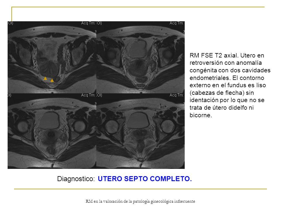 RM en la valoración de la patología ginecológica infrecuente RM FSE T2 axial. Utero en retroversión con anomalía congénita con dos cavidades endometri