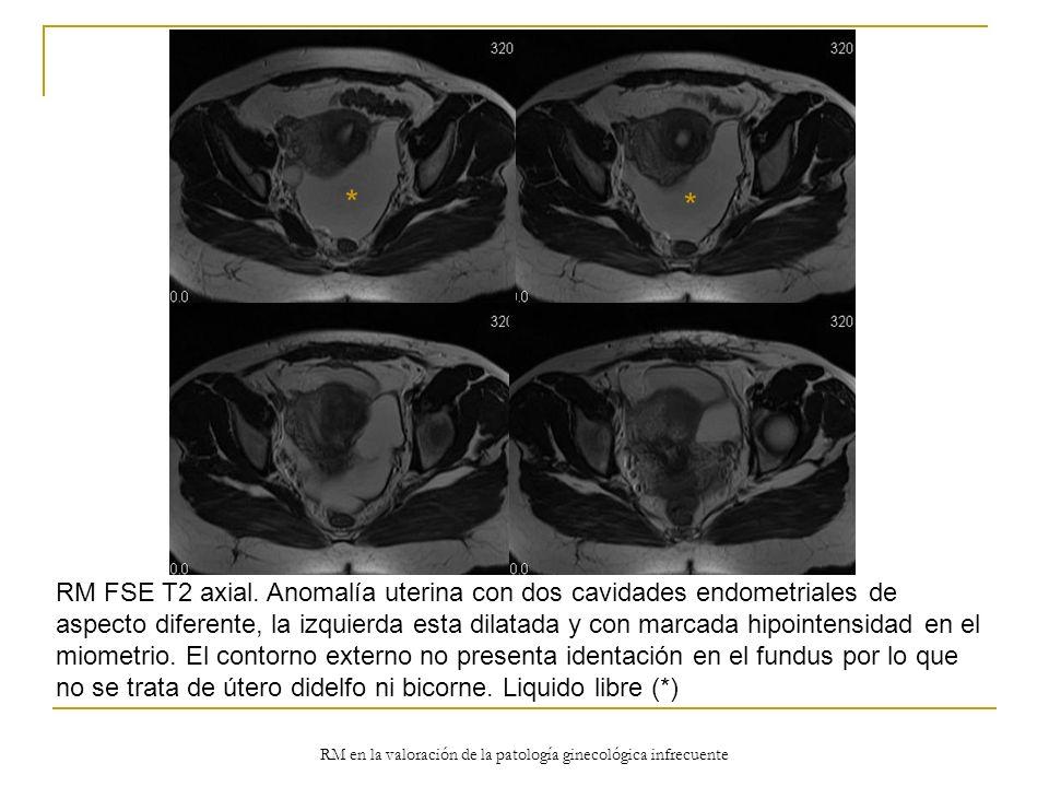 RM en la valoración de la patología ginecológica infrecuente RM FSE T2 axial. Anomalía uterina con dos cavidades endometriales de aspecto diferente, l