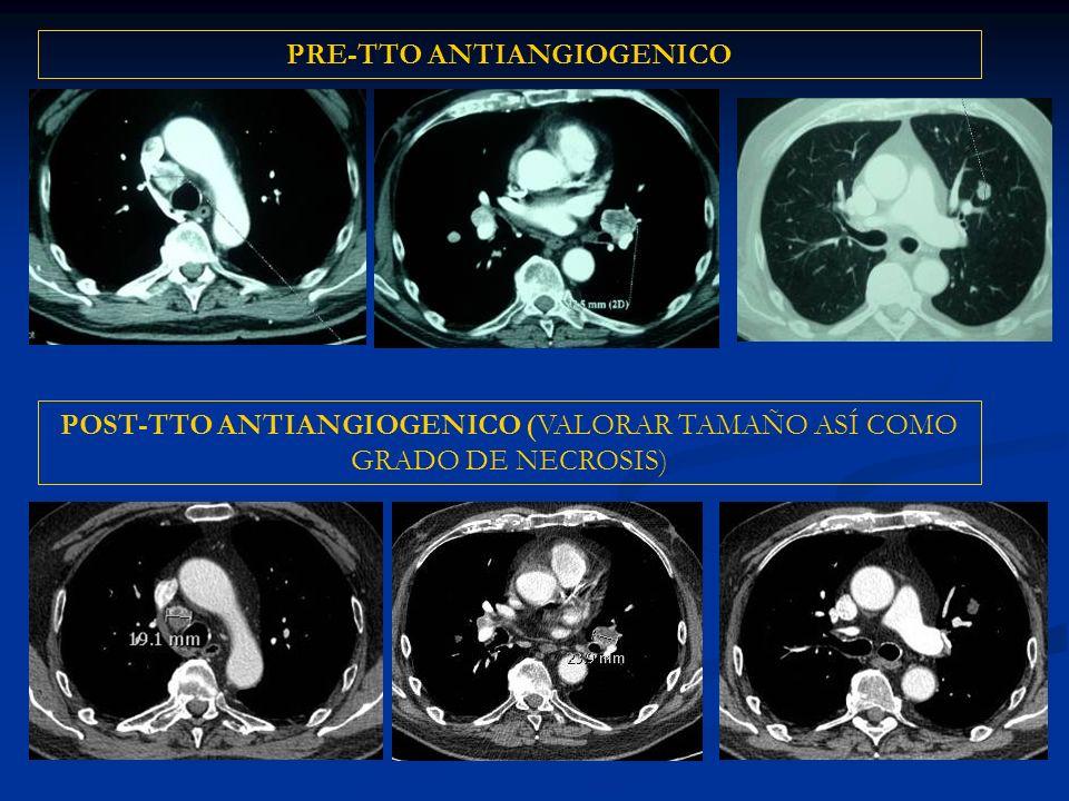 PRE-TTO ANTIANGIOGENICO POST-TTO ANTIANGIOGENICO (VALORAR TAMAÑO ASÍ COMO GRADO DE NECROSIS)
