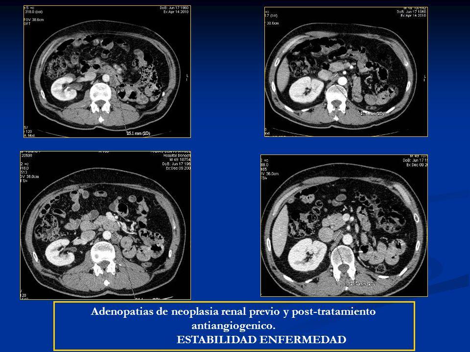 Adenopatias de neoplasia renal previo y post-tratamiento antiangiogenico. ESTABILIDAD ENFERMEDAD
