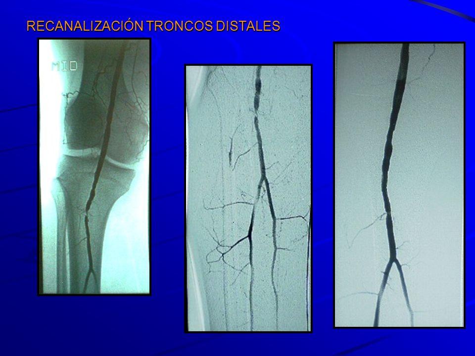 Enero 2009 – Enero 2010 91 vasos distales en 71 pacientes –2 pacientes 2 lados –6 reintervenciones