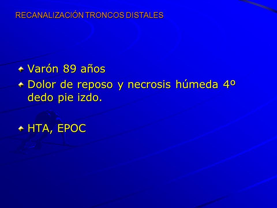 RECANALIZACIÓN TRONCOS DISTALES Varón 89 años Dolor de reposo y necrosis húmeda 4º dedo pie izdo. HTA, EPOC