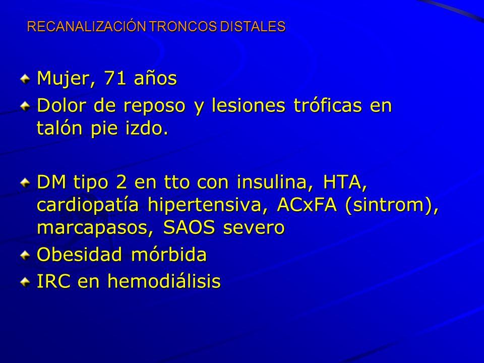RECANALIZACIÓN TRONCOS DISTALES Mujer, 71 años Dolor de reposo y lesiones tróficas en talón pie izdo. DM tipo 2 en tto con insulina, HTA, cardiopatía