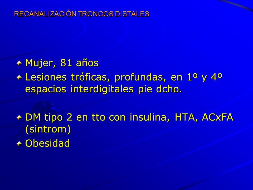 RECANALIZACIÓN TRONCOS DISTALES Mujer, 81 años Lesiones tróficas, profundas, en 1º y 4º espacios interdigitales pie dcho. DM tipo 2 en tto con insulin