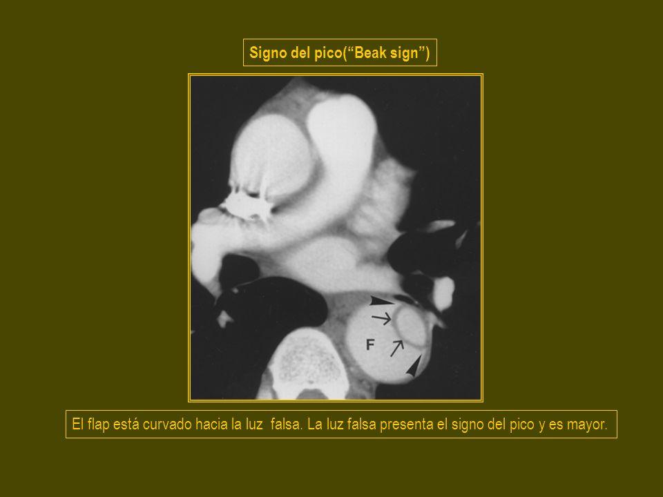 El flap está curvado hacia la luz falsa. La luz falsa presenta el signo del pico y es mayor. Signo del pico(Beak sign)