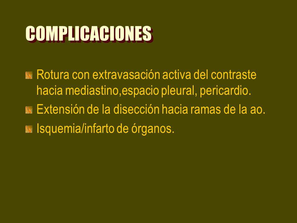 COMPLICACIONES Rotura con extravasación activa del contraste hacia mediastino,espacio pleural, pericardio. Extensión de la disección hacia ramas de la